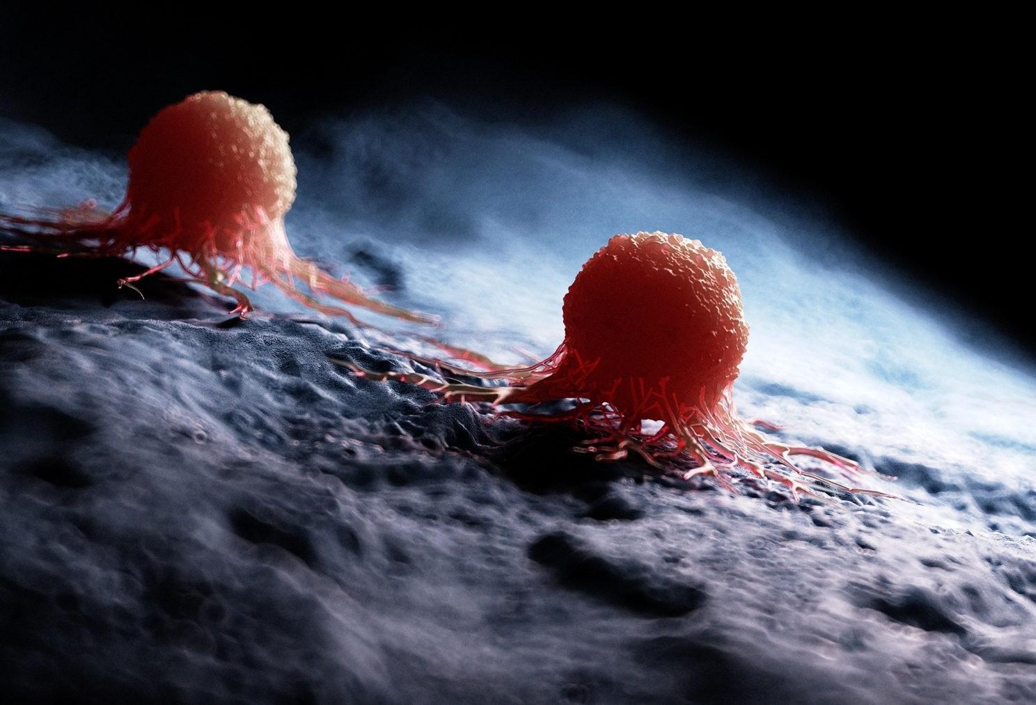 Bild zum Beitrag 'Der unbekannte Tumor'